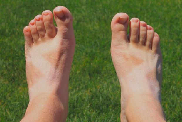 Nắng nóng cực độ, chị em mà đi 3 kiểu giày dép này thì xác định cháy chân thảm hại - Ảnh 2.