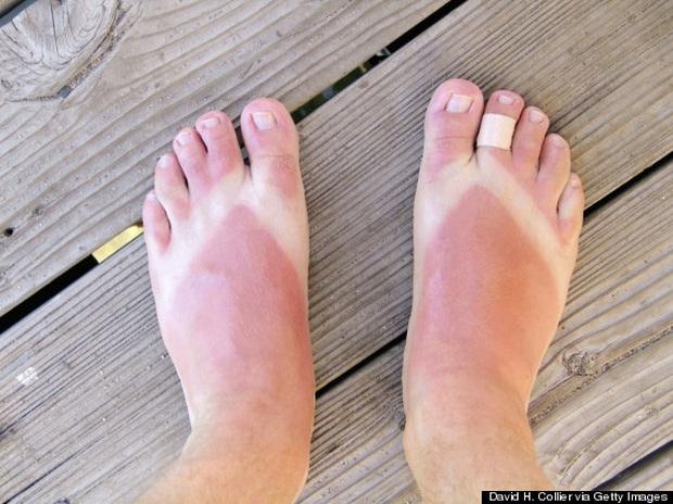 Nắng nóng cực độ, chị em mà đi 3 kiểu giày dép này thì xác định cháy chân thảm hại - Ảnh 3.