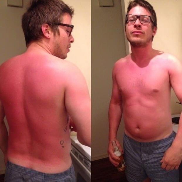 18 thảm cảnh mang tên cháy nắng mùa hè chỉ nhìn thôi cũng thấy đau xót lắm rồi - Ảnh 7.