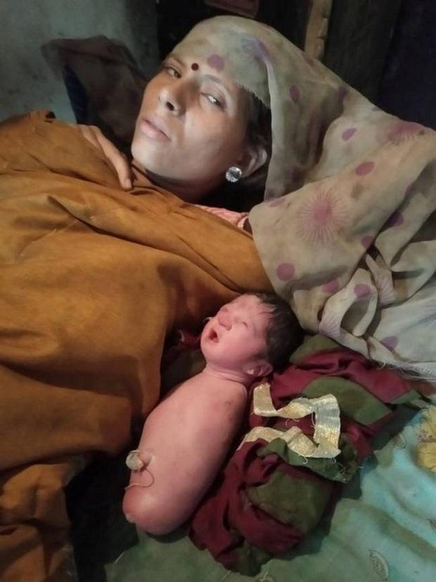 Xuất hiện em bé sinh ra không có cả tay lẫn chân, giống hệt hội chứng mà Nick Vujicic mắc phải - Ảnh 1.