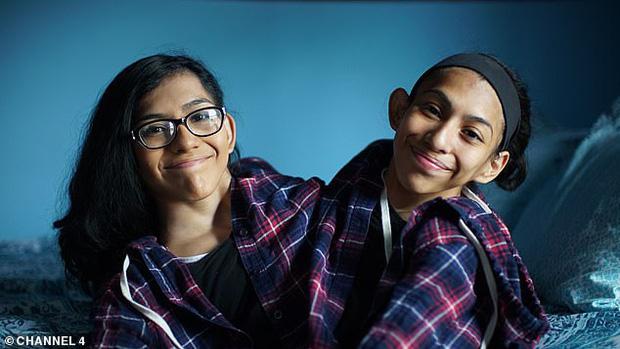 Câu chuyện cặp chị em song sinh với cơ thể dính liền từ chối phẫu thuật tách đôi, nguyện cùng nhau sống trong 1 thân xác - Ảnh 1.