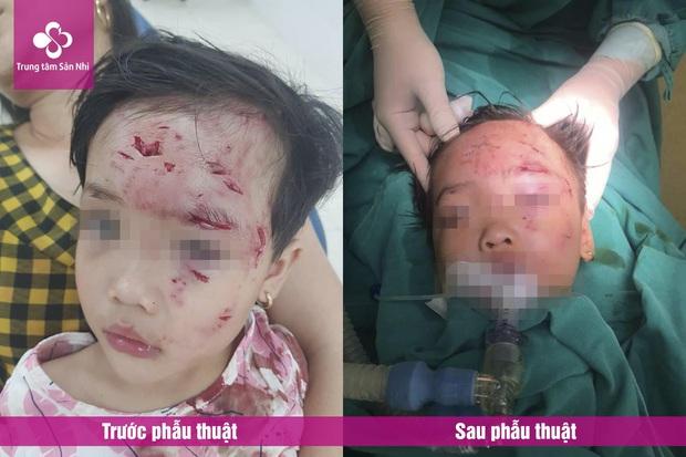 Phú Thọ: Bé gái 3 tuổi bị chó nhà hàng xóm cắn lộ xương trán  - Ảnh 1.