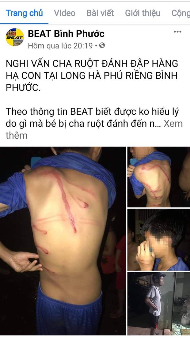 Công an tỉnh Bình Phước thông tin vụ cha bạo hành con ruột - Ảnh 1.