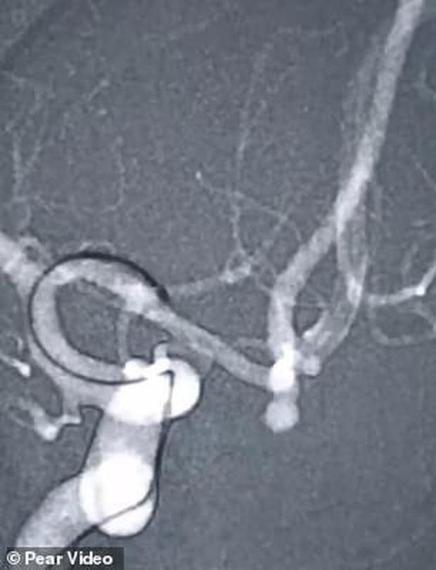 Người phụ nữ suýt chết vì vỡ mạch máu não khi cố hát karaoke nốt cao - Ảnh 1.