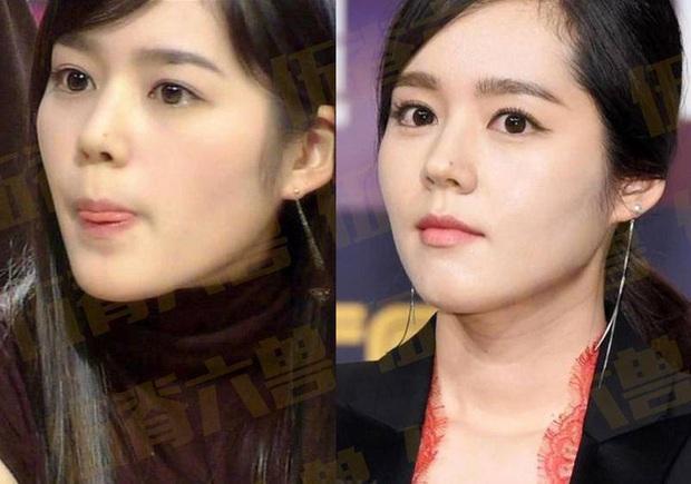 Loạt khoảnh khắc ngày ấy - bây giờ của 15 nữ thần Kbiz: Song Hye Kyo, Jeon Ji Hyun đều thay đổi, chỉ duy nhất Son Ye Jin lại được nhận xét thế này - Ảnh 7.