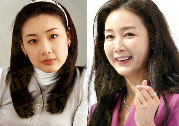 Loạt khoảnh khắc ngày ấy - bây giờ của 15 nữ thần Kbiz: Song Hye Kyo, Jeon Ji Hyun đều thay đổi, chỉ duy nhất Son Ye Jin lại được nhận xét thế này - Ảnh 10.