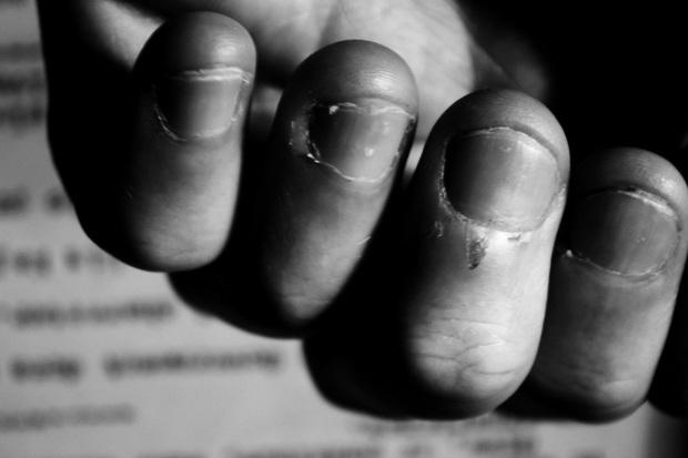 Tại sao nhiều người lúc cần suy nghĩ hay buồn bực lại cắn móng tay? - Ảnh 2.
