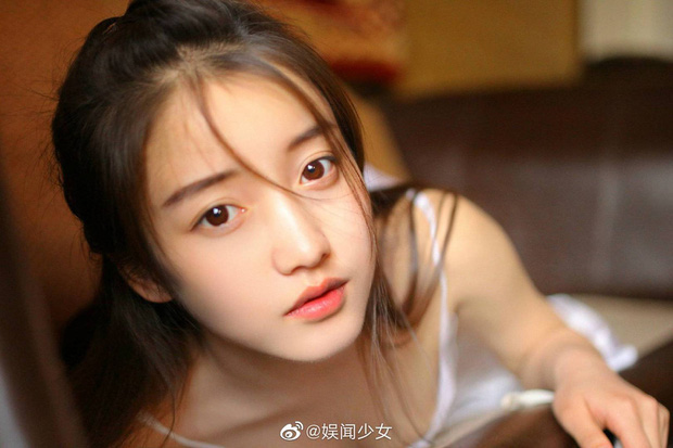 Vừa gây sốt mạng xã hội với loạt ảnh nữ thần, Khương Trinh Vũ phải tạm dừng ghi hình Sáng tạo doanh vì chấn thương - Ảnh 1.
