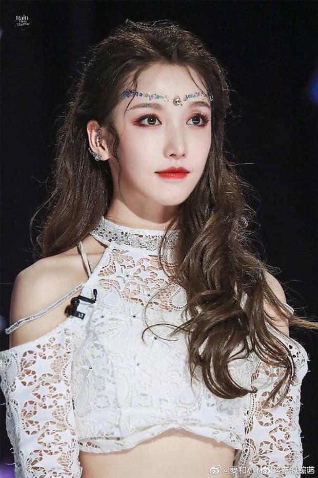 Vừa gây sốt mạng xã hội với loạt ảnh nữ thần, Khương Trinh Vũ phải tạm dừng ghi hình Sáng tạo doanh vì chấn thương - Ảnh 4.