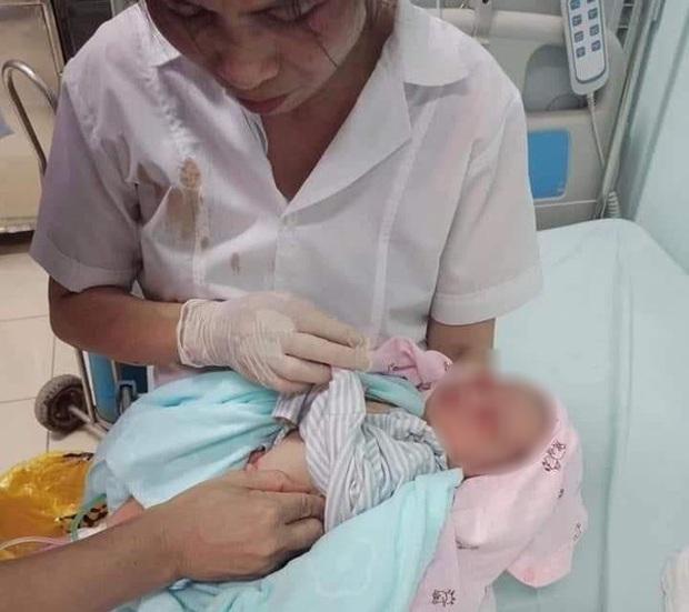 """Hành trình sống sót kỳ diệu của bé sơ sinh bị bỏ dưới hố gas 3 ngày với cái nóng 40 độ C: """"Bé rất kiên cường dù chẳng có lấy một mảnh bỉm tã bên mình"""" - Ảnh 4."""