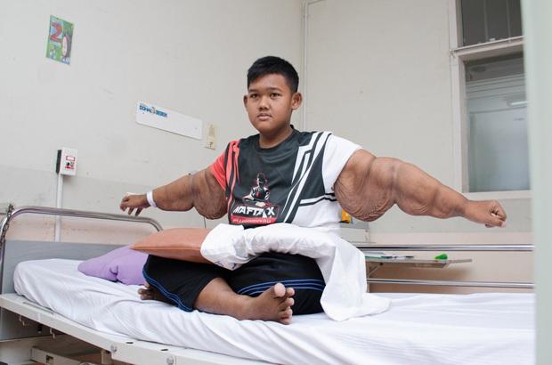 Hành trình giảm cân ngoạn mục của cậu bé béo nhất thế giới nặng gần 200kg khi mới 10 tuổi nhưng để lại cơ thể bị chảy xệ gây ám ảnh - Ảnh 5.