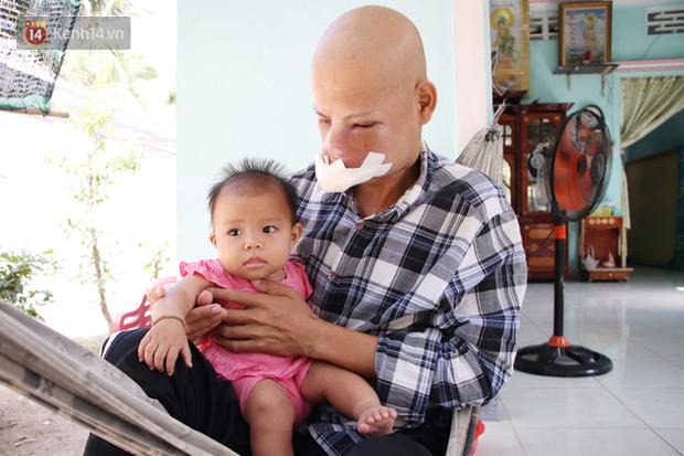 Bước đường cùng của người cha bị ung thư hốc mũi ôm 2 đứa con thơ dại: Con sợ cha chết, không sống cùng tụi con nữa - Ảnh 9.