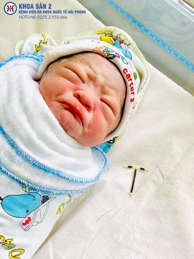 Câu chuyện phía sau hình ảnh cháu bé sơ sinh cầm trên tay vòng tránh thai gửi trả bố mẹ - Ảnh 2.
