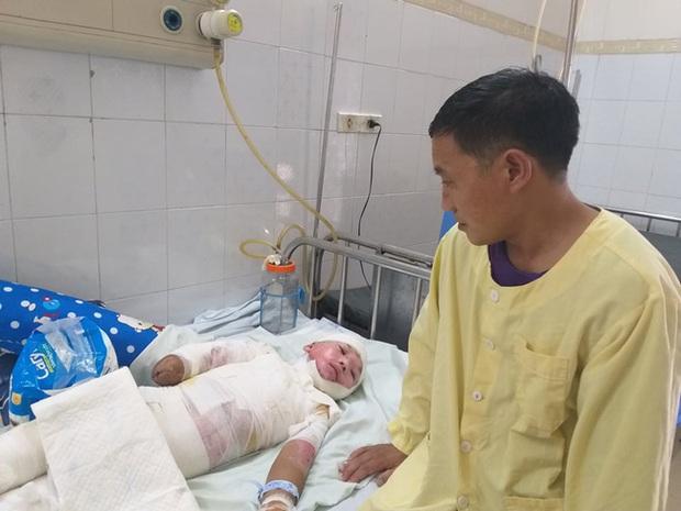 Trèo lên cột điện bắt chim, bé trai 12 tuổi bị điện giật phải cắt bỏ tay chân, tương lai mịt mù - Ảnh 3.