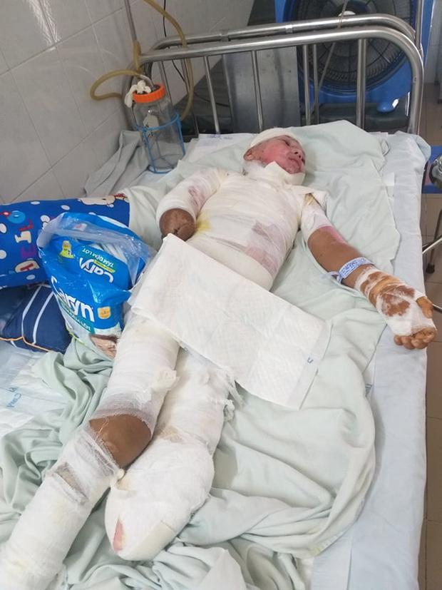 Trèo lên cột điện bắt chim, bé trai 12 tuổi bị điện giật phải cắt bỏ tay chân, tương lai mịt mù - Ảnh 6.