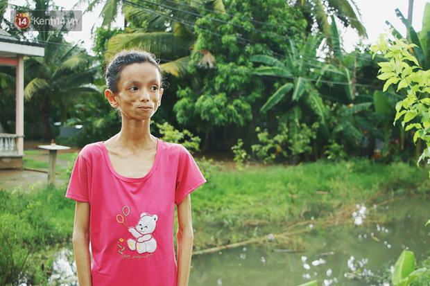 Xót cảnh thiếu nữ 16 tuổi chỉ còn da bọc xương, 3 năm trời phải tháo khớp tay chân để giành sự sống từ căn bệnh quái ác - Ảnh 1.