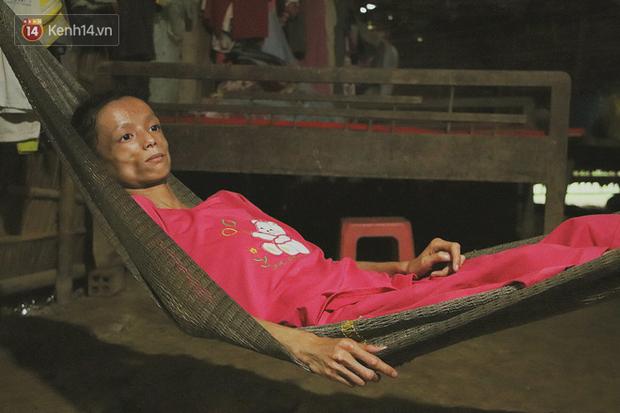 Xót cảnh thiếu nữ 16 tuổi chỉ còn da bọc xương, 3 năm trời phải tháo khớp tay chân để giành sự sống từ căn bệnh quái ác - Ảnh 10.