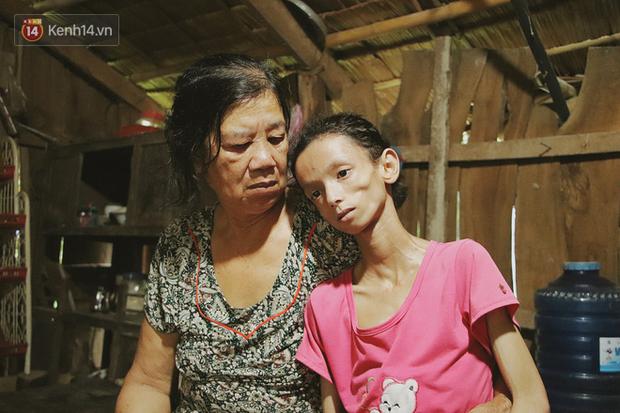 Xót cảnh thiếu nữ 16 tuổi chỉ còn da bọc xương, 3 năm trời phải tháo khớp tay chân để giành sự sống từ căn bệnh quái ác - Ảnh 14.