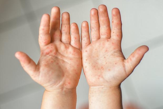 Hiện đang có dịch tay chân miệng, hãy nắm rõ 6 lưu ý của Bộ Y tế để phòng tránh và nhận biết bệnh kịp thời - Ảnh 5.