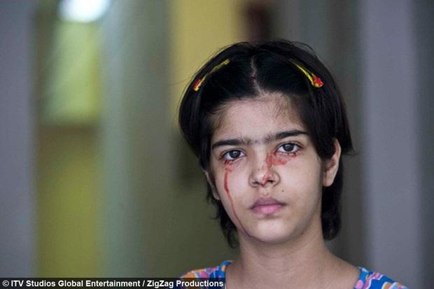 Giải mã bí ẩn của haemolacria: Chứng bệnh khiến những cô gái Ấn Độ khóc ra máu - Ảnh 2.