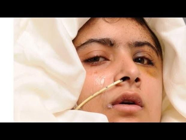 Malala Yousafzai: Cô gái hồi sinh ngoạn mục sau khi bị bắn vào đầu năm 15 tuổi và trở thành biểu tượng toàn cầu cho giáo dục nữ giới - Ảnh 2.
