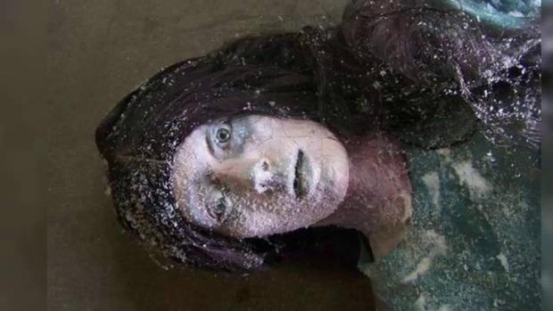Thiếu nữ 19 tuổi bị đóng băng đến tím tái, cứng như đá tưởng đã chết thì 6 tiếng sau hồi sinh, kể lại trải nghiệm như đùa - Ảnh 3.