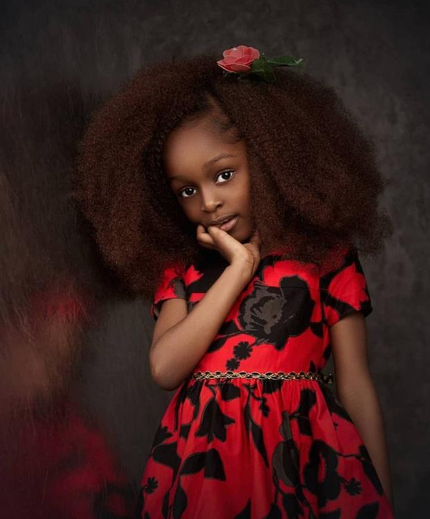 2 năm sau khi nổi tiếng bất đắc dĩ nhờ vài bức ảnh, bé gái được mệnh danh là ngọc trai đen đã có cuộc sống khác xưa rất nhiều - Ảnh 3.