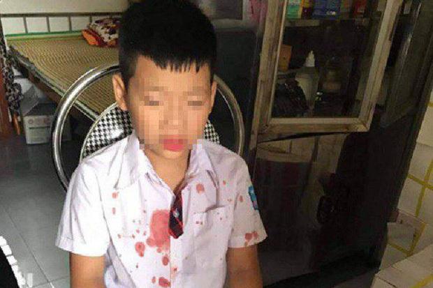 Khởi tố người đàn ông hành hung bé trai lớp 1 để trả thù cho con - Ảnh 1.