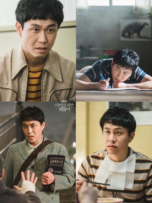 Anh trai Kim Soo Hyun trong Điên Thì Có Sao ngoài đời mắc bệnh mù hiếm, chỉ 2% dân số thế giới gặp phải - Ảnh 4.