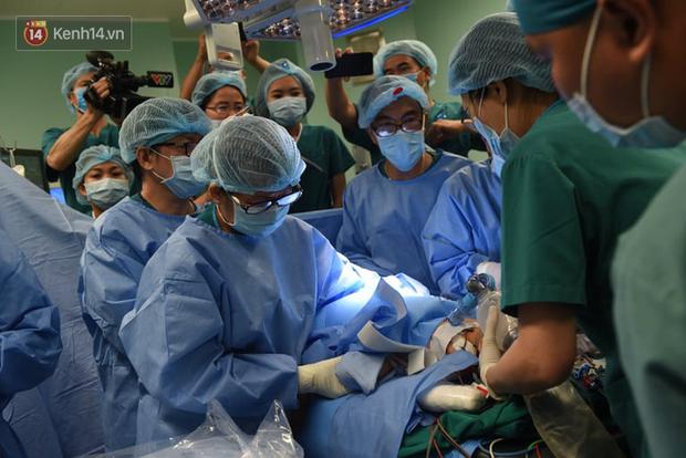 Toàn cảnh hơn 12 giờ phẫu thuật tách rời cặp song sinh Trúc Nhi - Diệu Nhi: 2 con đã về nguyên vẹn hình hài - Ảnh 10.