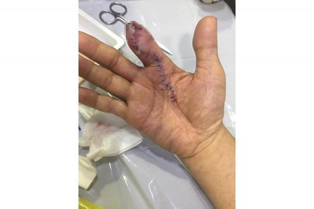 Chỉ vì sơ suất trong lúc rửa tôm, chàng trai bị viêm hoại tử phải phẫu thuật cắt bỏ một đốt ngón tay  - Ảnh 2.
