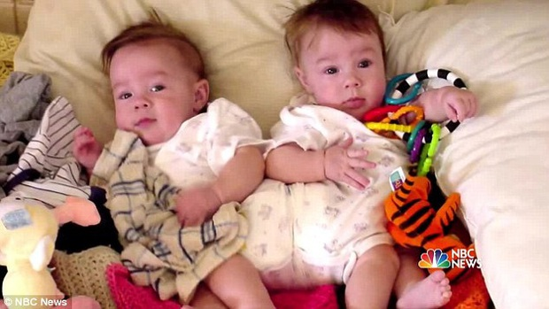 2 con gái sinh đôi dính liền, cha mẹ mất 7 tháng mới quyết định tách rời con, 17 năm sau ai cũng mãn nguyện khi thấy nụ cười của các em - Ảnh 4.