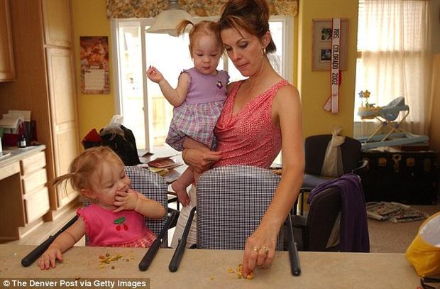 2 con gái sinh đôi dính liền, cha mẹ mất 7 tháng mới quyết định tách rời con, 17 năm sau ai cũng mãn nguyện khi thấy nụ cười của các em - Ảnh 6.