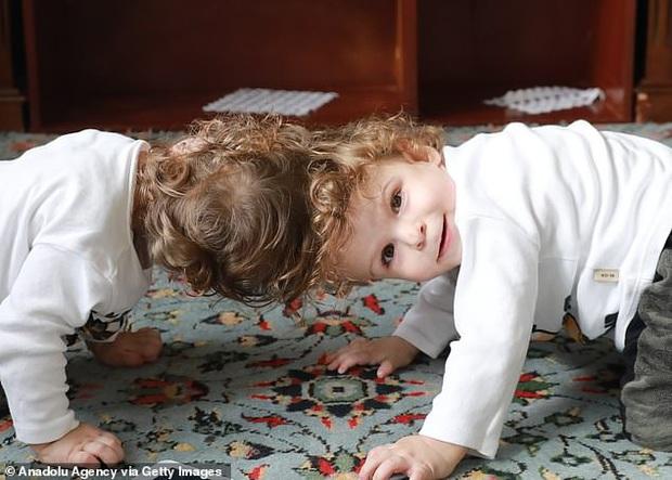 Cuộc chiến giành sự sống của cặp song sinh dính đầu cực hiếm: Gần 2 tuổi vẫn không thấy mặt nhau, trải qua 3 cuộc đại phẫu thuật mới có thể tách rời - Ảnh 1.