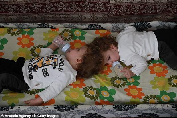 Cuộc chiến giành sự sống của cặp song sinh dính đầu cực hiếm: Gần 2 tuổi vẫn không thấy mặt nhau, trải qua 3 cuộc đại phẫu thuật mới có thể tách rời - Ảnh 3.