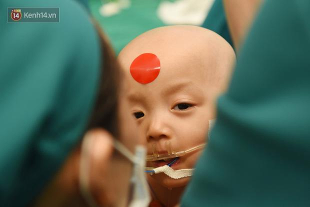 Cặp song sinh Trúc Nhi - Diệu Nhi đã tỉnh lại sau ca mổ hơn 12 tiếng, đang được chăm sóc tích cực - Ảnh 1.