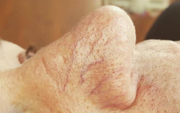 Gan bị tổn thương sẽ thông báo cho bạn biết nhờ vào 4 tình trạng khác lạ xuất hiện trên da - Ảnh 4.