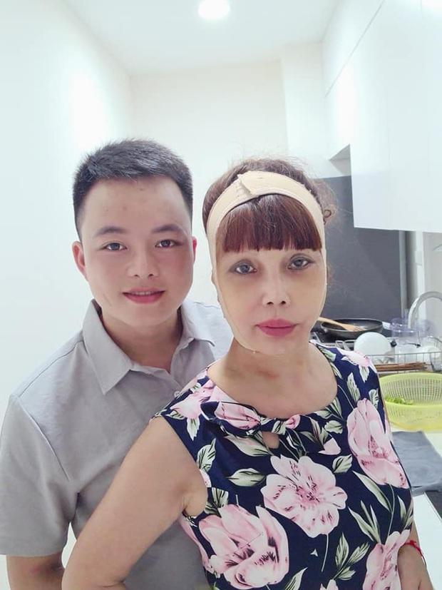 Xôn xao hình ảnh gương mặt sưng phù, biến dạng của cô dâu 62 tuổi và sự cưng nựng của chồng trẻ kém 36 tuổi gây bất ngờ - Ảnh 4.