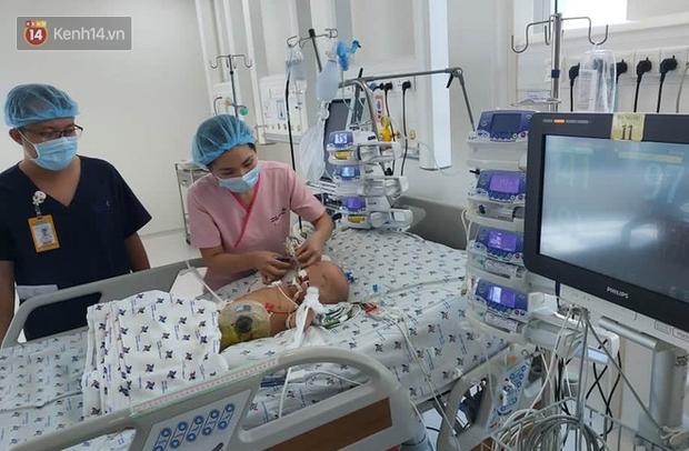 Thông tin mới nhất của cặp song sinh được tách rời: Bé Diệu Nhi đã cai máy thở, phản xạ tốt khi nghe giọng cha mẹ - Ảnh 1.