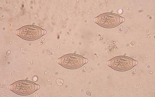 Ăn phi lê cá chưa nấu chín, một nửa gan của người đàn ông phồng to lên chứa đầy ký sinh trùng sán lá gan - Ảnh 3.