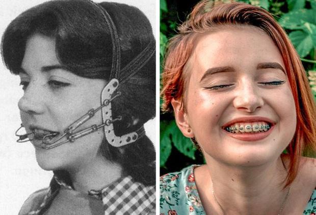 Cận cảnh những phương pháp làm đẹp từ 100 năm trước của chị em phụ nữ, nhiều cái trông không khác gì trong phim kinh dị - Ảnh 10.