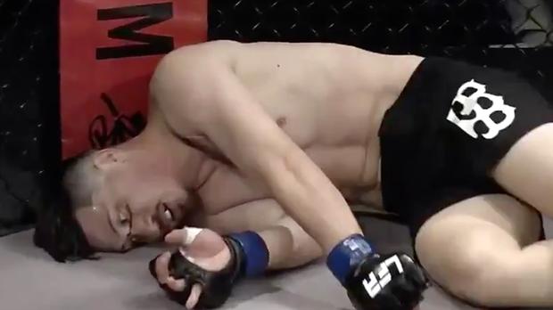 Nhận phải đòn chơi xấu của đối thủ, anh chàng võ sĩ bị vỡ xương gò má, mắt thì đỏ ngầu như ma cà rồng - Ảnh 2.