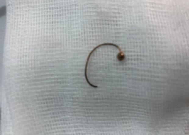 Bé gái 10 tháng tuổi suýt chết vì nuốt phải bông tai vàng sắc nhọn, ghim vào thực quản - Ảnh 3.