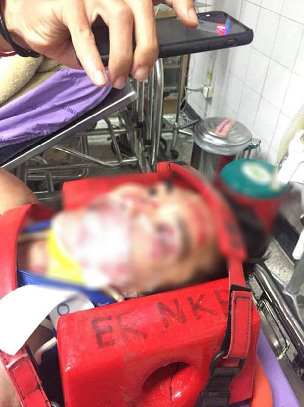 Chấn thương kinh hoàng của VĐV xe đạp Thái Lan: Mặt biến dạng, cột sống gãy, nặng đến nỗi không thể chuyển viện để điều trị - Ảnh 2.