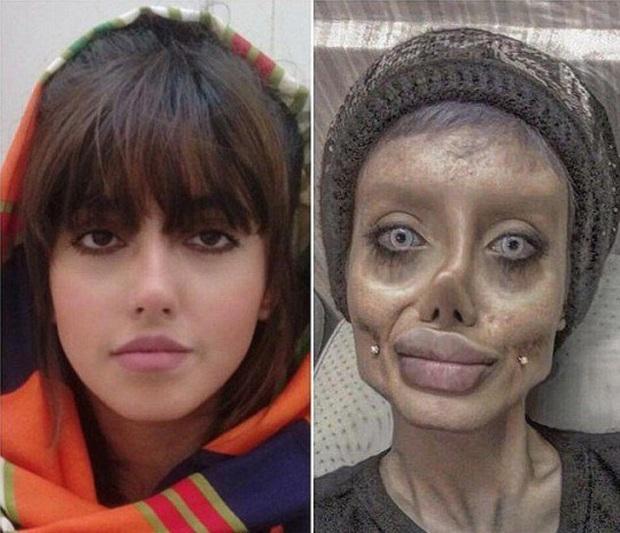 Bản sao lỗi của Angelina Jolie từng nổi đình đám MXH hiện đang sống chật vật, tình trạng sức khỏe nguy kịch vì nhiễm Covid-19 - Ảnh 4.