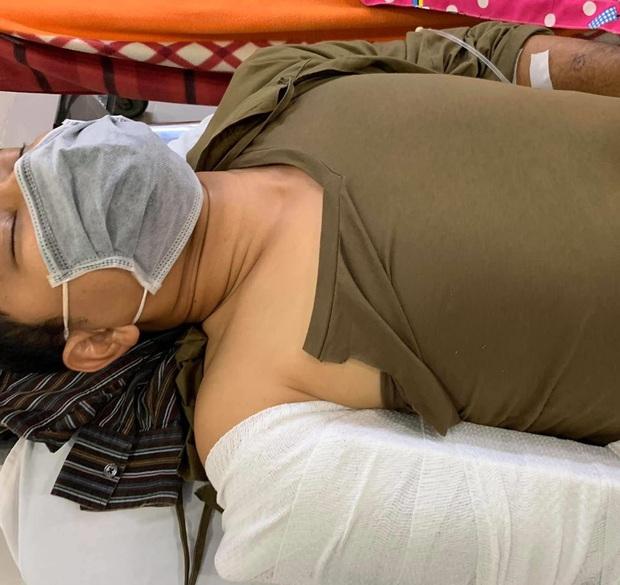 Diễn viên Huỳnh Đông gặp tai nạn, xương ống tay gãy đôi vì ghi hình phim mới - Ảnh 2.