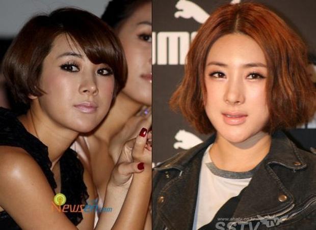 9 idol Kpop dám thừa nhận chỉnh mũi: Người kể sụn tai đi du lịch trên mũi, kẻ bất đắc dĩ vì bị nhà tiên tri bóc mẽ - Ảnh 10.