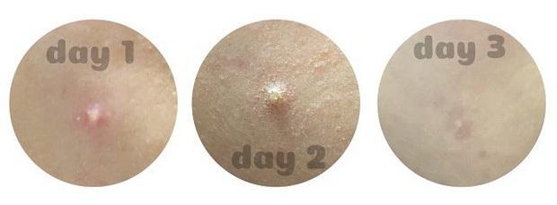 5 tuýp kem trị mụn thần tốc bạn nên mua ngay đề phòng việc đeo khẩu trang kín bưng khiến da chi chít mụn - Ảnh 11.