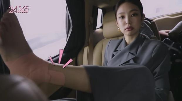 Tạm quên hình tượng sang chảnh, Jennie (BLACKPINK) giơ luôn chân trước ống kính để... khoe vết thương - Ảnh 1.