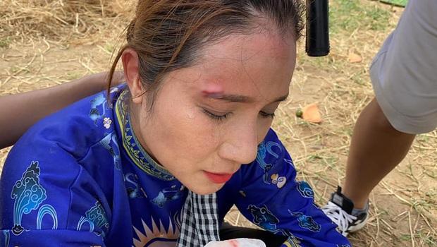 MC Cát Tường gặp chấn thương nặng, phải khâu sống tại chỗ ngay khi đang quay hình - Ảnh 2.